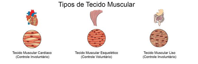 Tipos de Tecido Muscular