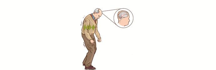 Senhor com Doença de Parkinson