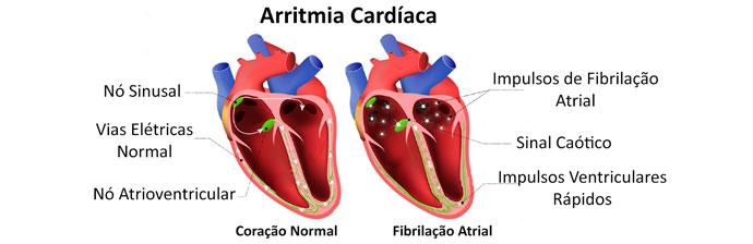Anatomia da Arritmia Cardíaca