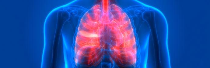 doenca-pulmonar-obstrutiva-cronica-1