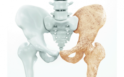 Treinamento Físico Focado Em Aluno Com Osteoporose