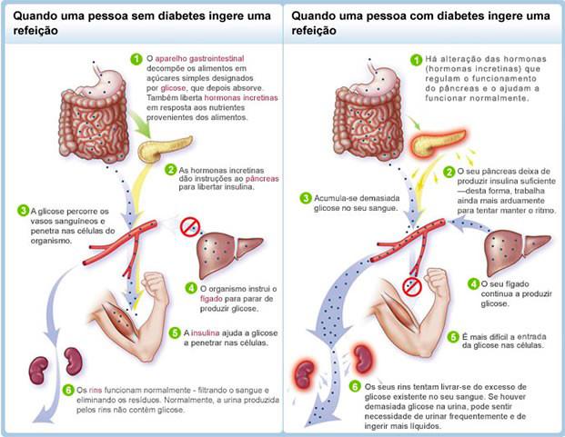 lista de alimentos para la diabetes del embarazo