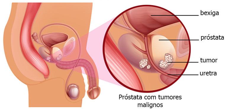 atividade física e o câncer de próstata