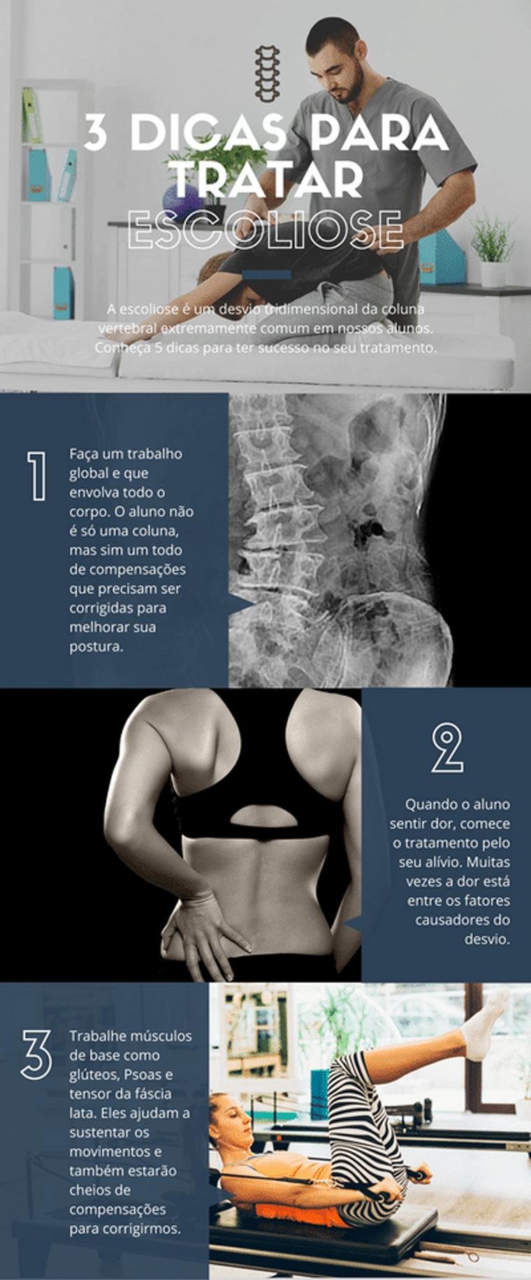 tratar-a-escoliose-infografico